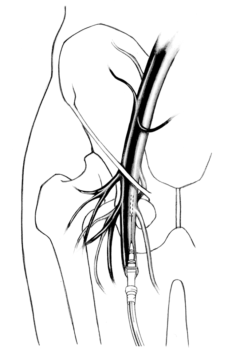Femoral vein push